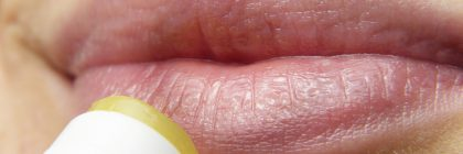 Jak zadbać o wygląd ust?